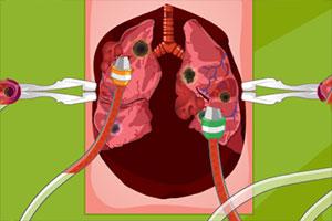 马瑞的肺部手术